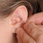 ear-stapling