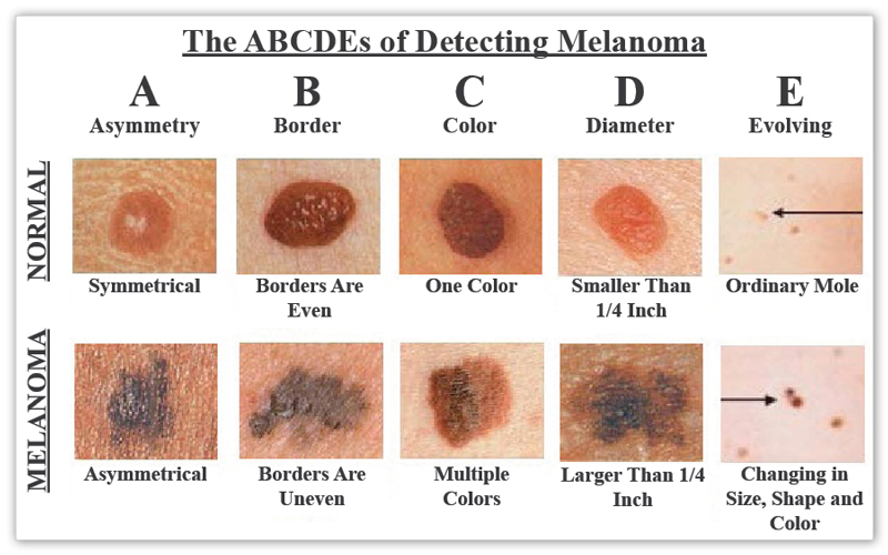 Do you have a personal story you would like to share about skin cancer