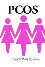 Link between PCOS & type 2 diabetes